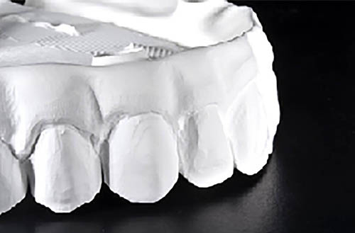 advanced-zirconia-crowns