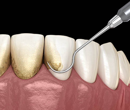 best-periodontal-surgery-opatija