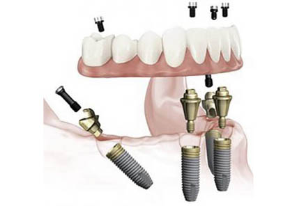best-dental-implant-surgery-london