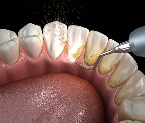 initial-periodontal-therapy-harley-street
