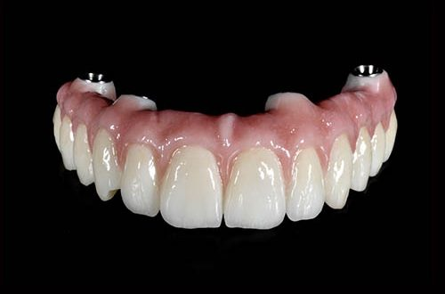 mobile-denture