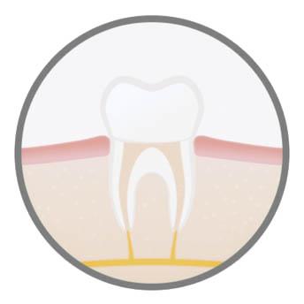 advanced-endodontic-procedure-harley-street