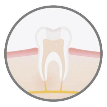 best-endodontic-procedure