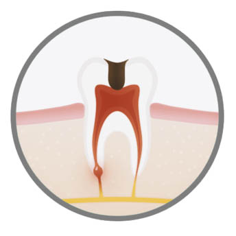 best-endodontic-treatment-in-london