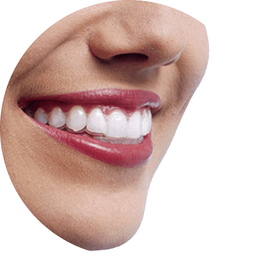 celebrity-dental-orthodontics-london