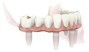 implant-treatments-for-edentulous-situations