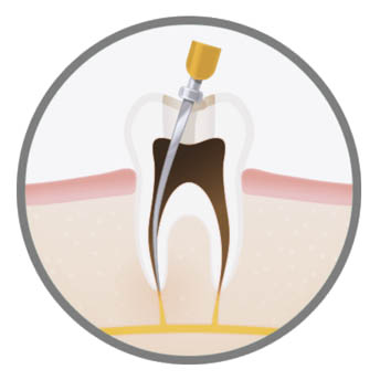 luxury-endodontic-treatment