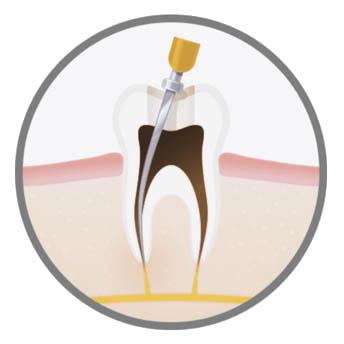 luxury-endodontic-treatment