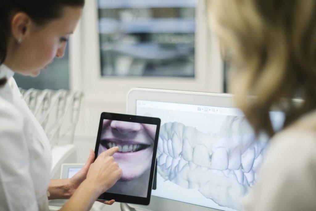Parodontoza-dijagnoza